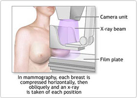 Breast Cancer Diagnosing