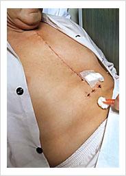operasi: tiga puluh cm bekas luka terasa nyeri