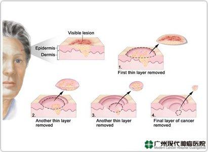 Gejala kanker kulit