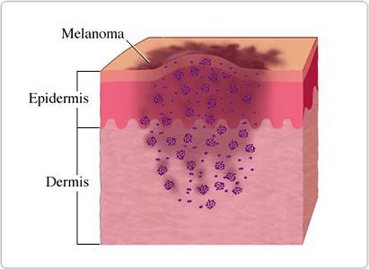 皮肤癌症状