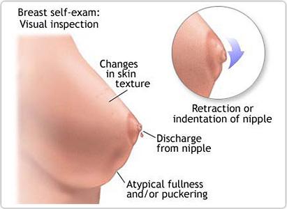 乳腺癌症状