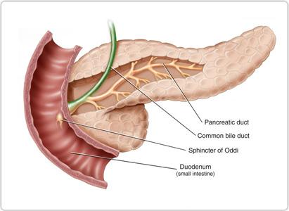 胰腺癌症状