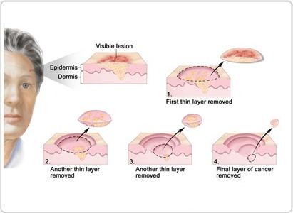皮肤癌诊断