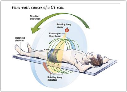 胰腺癌诊断