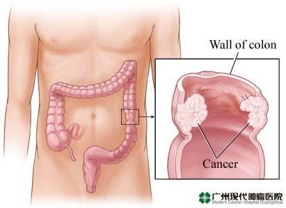 Kanker Usus Besar,Gejala kanker Usus Besar