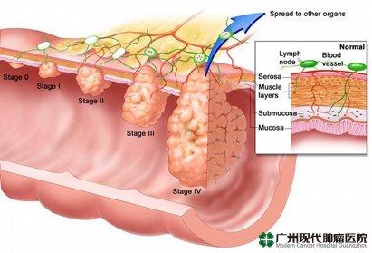 Kanker Esofagus 2