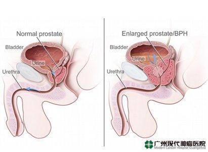 Kanker Prostat