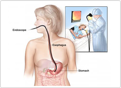 Stomach Cancer Diagnosis