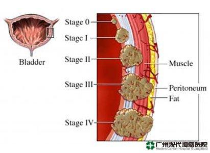 Kanker Kandung Kemih,Terapi Kanker Kandung Kemih,Gejala Kanker Kandung Kemih,Diagnosis Kanker Kandung Kemih