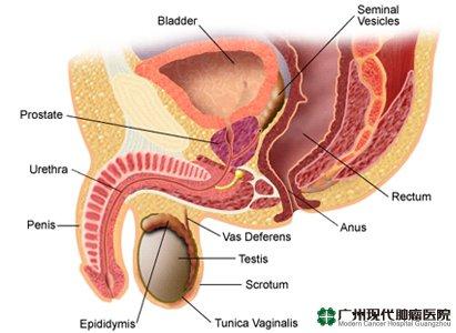 Kanker Penis