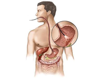 มะเร็งกระเพาะอาหาร,อาการมะเร็งกระเพาะอาหาร,การวินิจฉัยมะเร็งกระเพาะอาหาร,โรงพยาบาลมะเร็งสมัยใหม่กว่างโจว