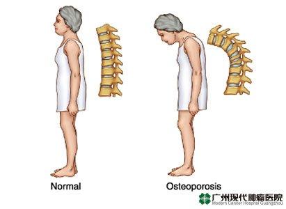 Ortopedi Teraphy Mininal Invasif