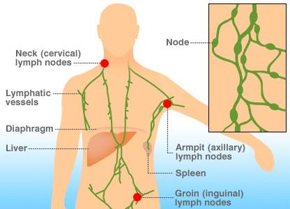 淋巴瘤症状