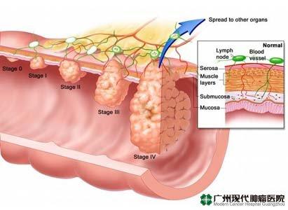 diagnosis kanker usus besar