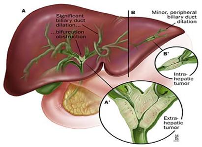 điều trị ung thư đường mật