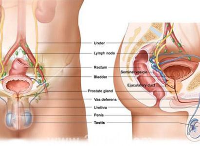 Testicular Cancer Diagnosis