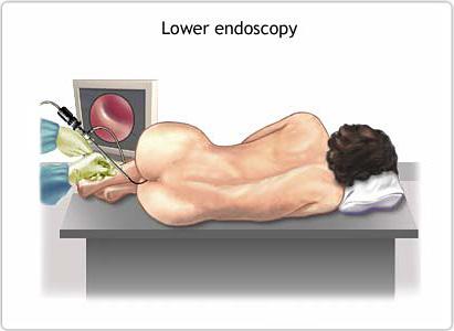 سرطان القولون والمستقيم