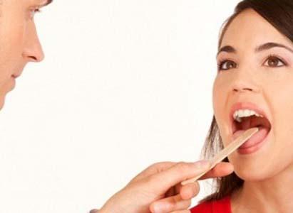 điều trị ung thư lưỡi