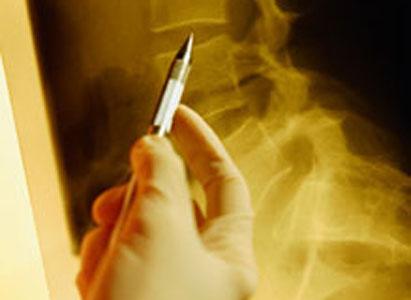 โรคมะเร็งกระดูก,การวินิจฉัยโรคมะเร็งกระดูก,โรงพยาบาลมะเร็งสมัยใหม่กว่างโจว