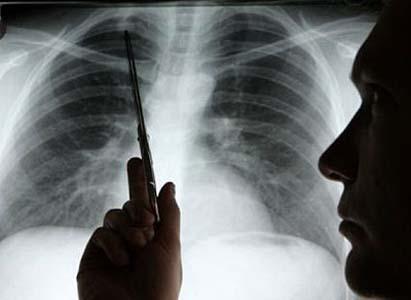 โรคมะเร็งปอด,การวินิจฉัยโรคมะเร็งปอด,โรงพยาบาลมะเร็งสมัยใหม่กว่างโจว
