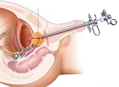 มะเร็งกระเพาะปัสสาวะ,อาการมะเร็งกระเพาะปัสสาวะ,การวินิจฉัยมะเร็งกระเพาะปัสสาวะ,การดูแลผู้ป่วยมะเร็งกระเพาะปัสสาวะ,โรงพยาบาลมะเร็งสมัยใหม่กว่างโจว